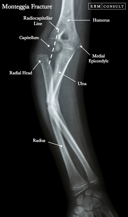 Normal Elbow Joint X Ray Child - KIDKADS