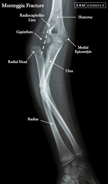 Monteggia Fracture Elbow Forearm X Rays Radiology Pinterest
