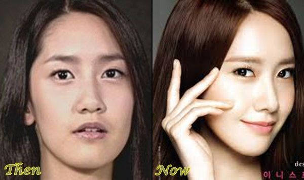 yoona plastic surgery before and after photos korea