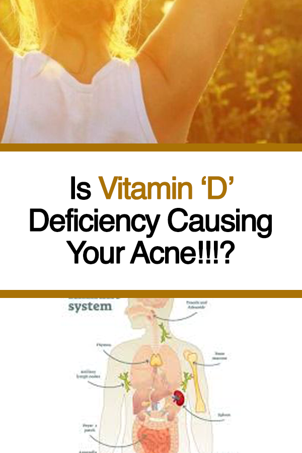 Is Vitamin 'D' Deficiency Causing Your Acne!!!? Vitamin