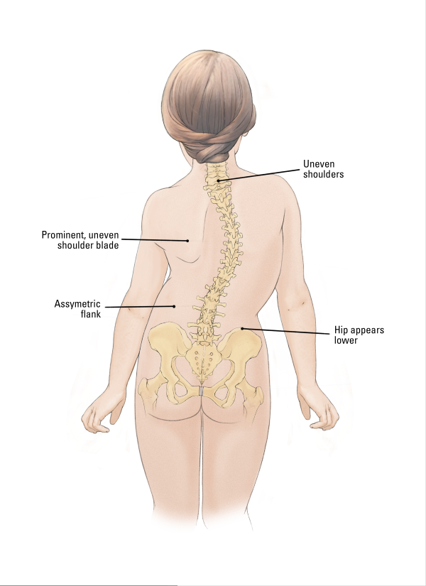 scoliosis, scoliosis diagram, assymetric flank, uneven ... diagram of flank back #8