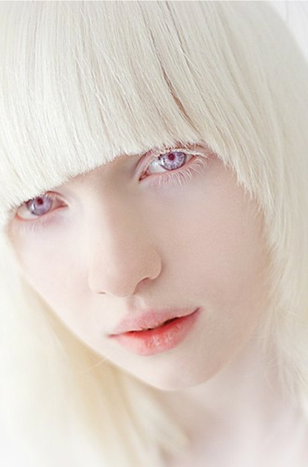 albino-girl-girls-uniform