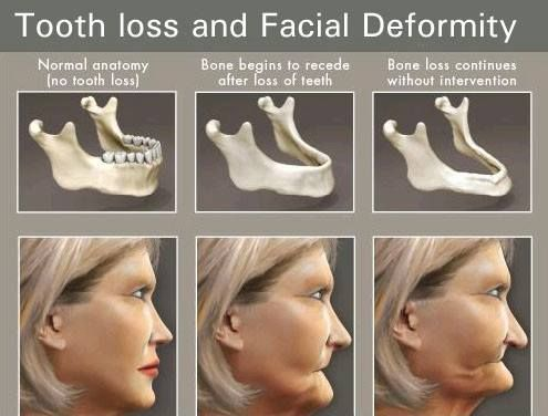 Teeth facial structure