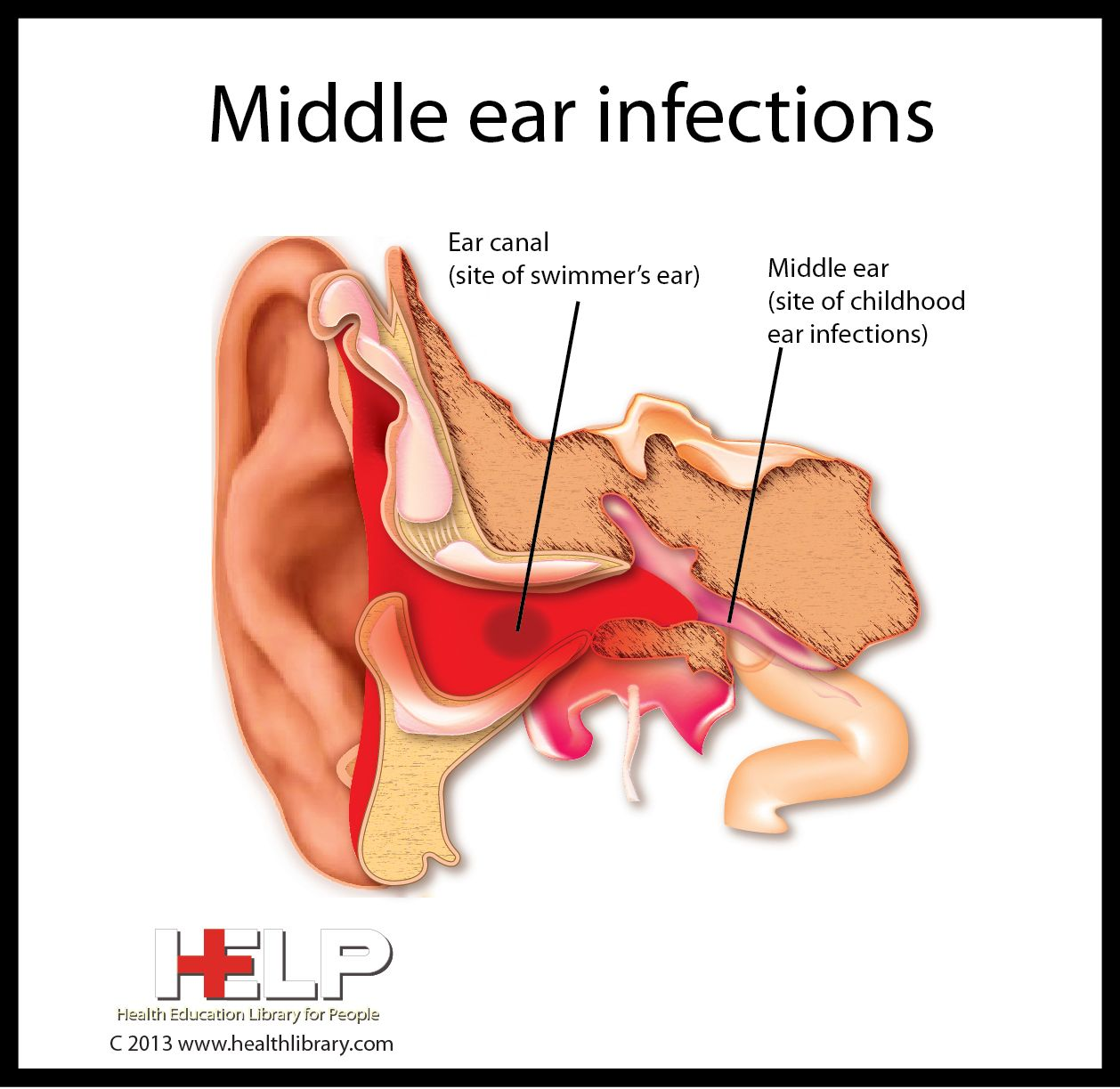 middle ear infections middle ear human body systems ear infection health education  [ 1258 x 1223 Pixel ]