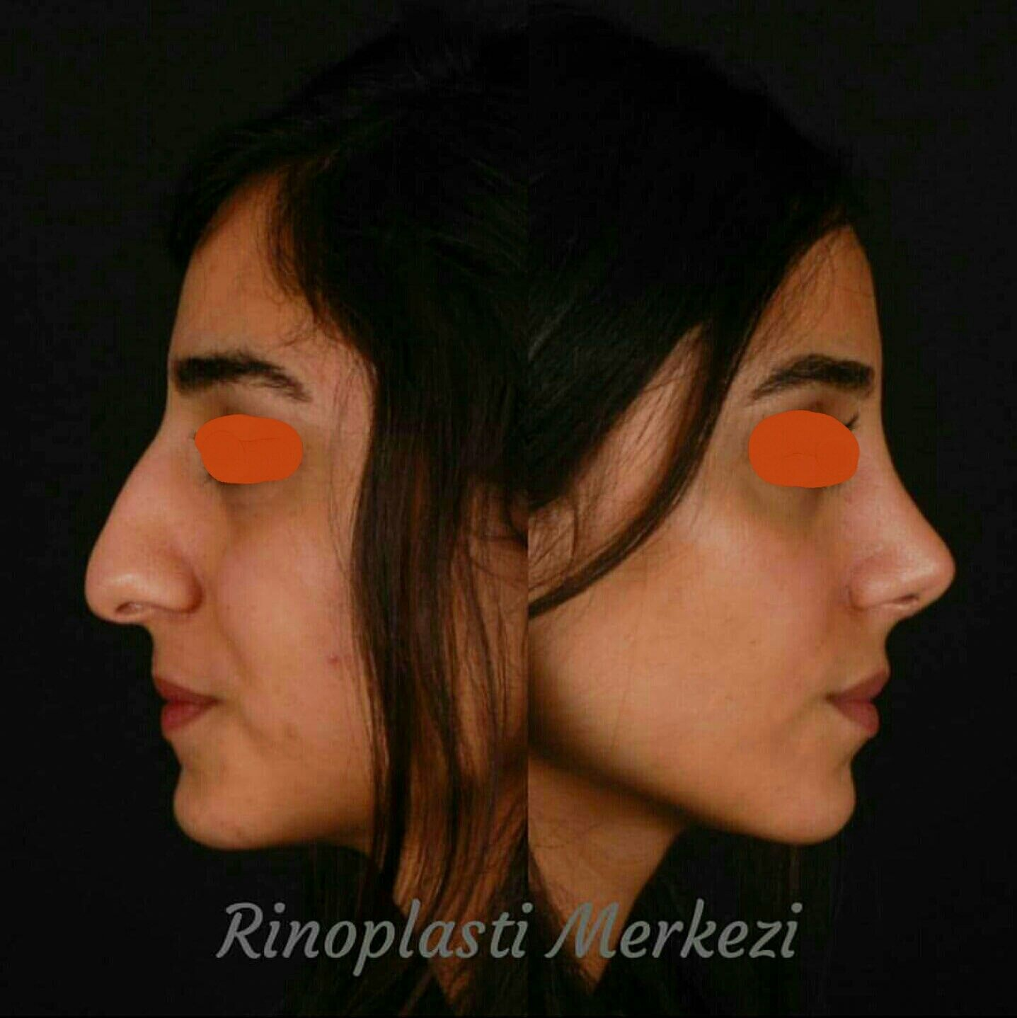 best ideas about nose surgery nose jobs perfect 17 best ideas about nose surgery nose jobs perfect nose and rhinoplasty