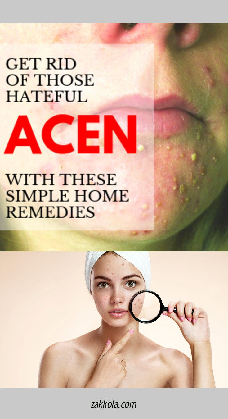 Visit the webpage to see more about acne. Follow the link to get more…