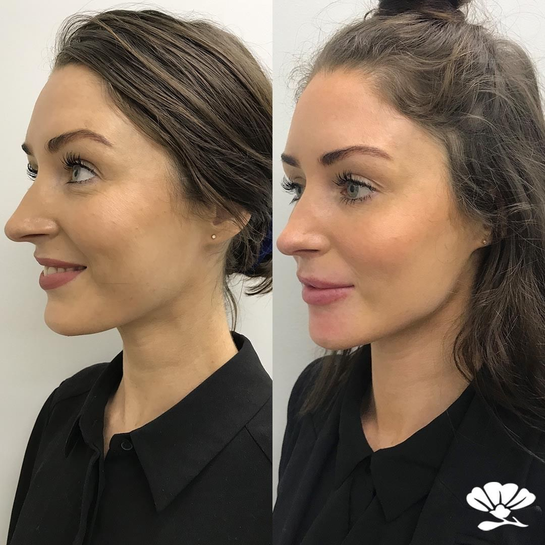 before and after dermal filler to the jawline and chin