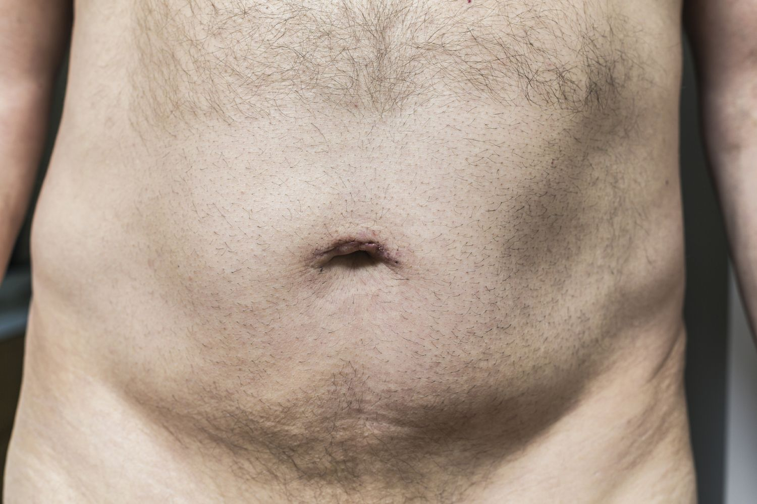 Why You Shouldnt Shave Your Pubic Hair  Health, Fitness -6245