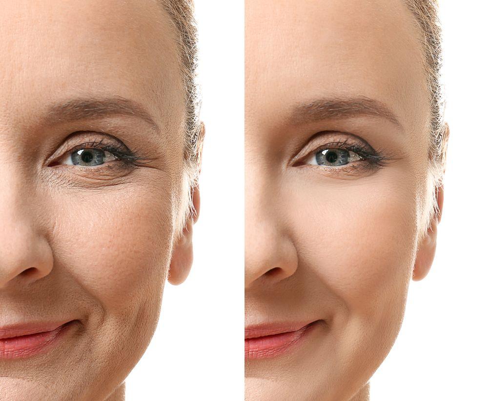 Pflegen Sie Ihre Haut Bevor Sie Es Bereuen Schönheitsklinik Schönheit Hautpflege