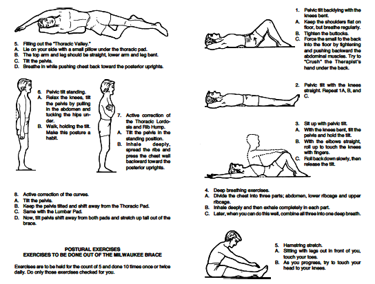39+ Scoliosis pain relief exercise ideas