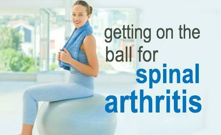 exercise is a key part of managing arthritis of the spine