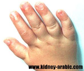 ما هو سبب تور م مع إرتفاع نسبة الكرياتينين في مصل الدم بعد أن يعاني من أمراض الكلي سوف يظهر كثيرا من الأعراض Kidney Failure Kidney Failure Symptoms Kidney