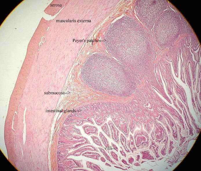 histological slides of the duodenum - Google Search ...