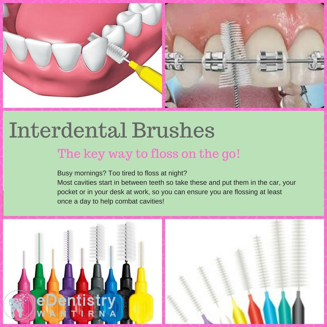 An alternative to flossing is using an interdental brush