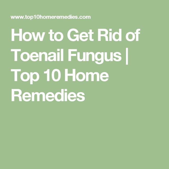 How to Get Rid of Toenail Fungus | Hongos uñas, Hongos y Remedios ...