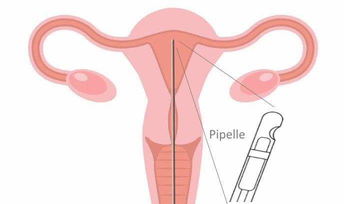 Scratching zur Verbesserung der Einnistung von Embryonen ...