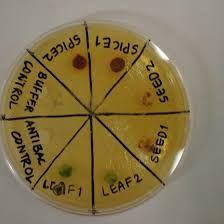 Αποτέλεσμα εικόνας για mikrobiologika uemata ergasthriaka