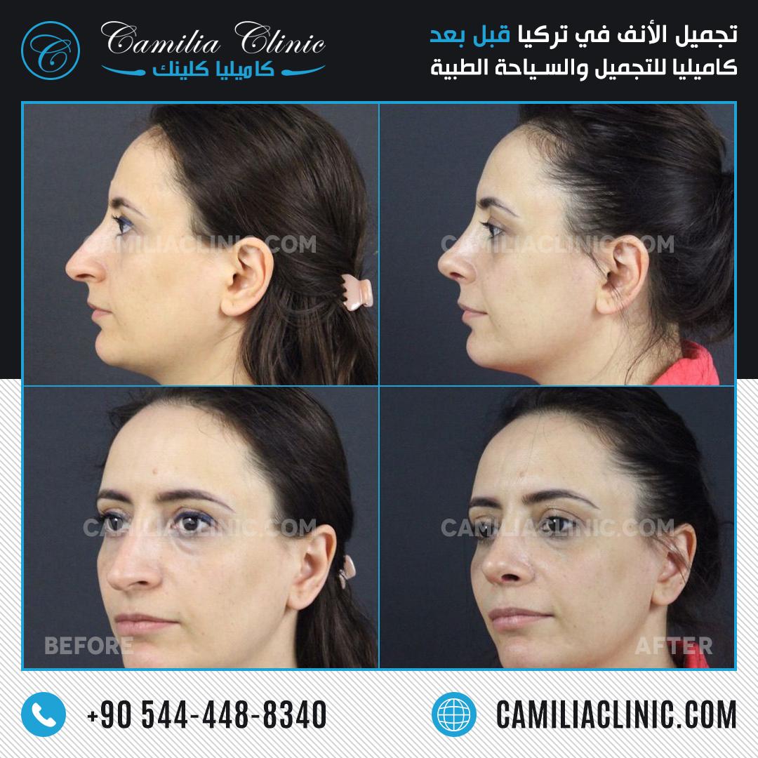 Nose Job Rhinoplasty Istanbul Turkey Nose Job Rhinoplasty Plastic Surgery