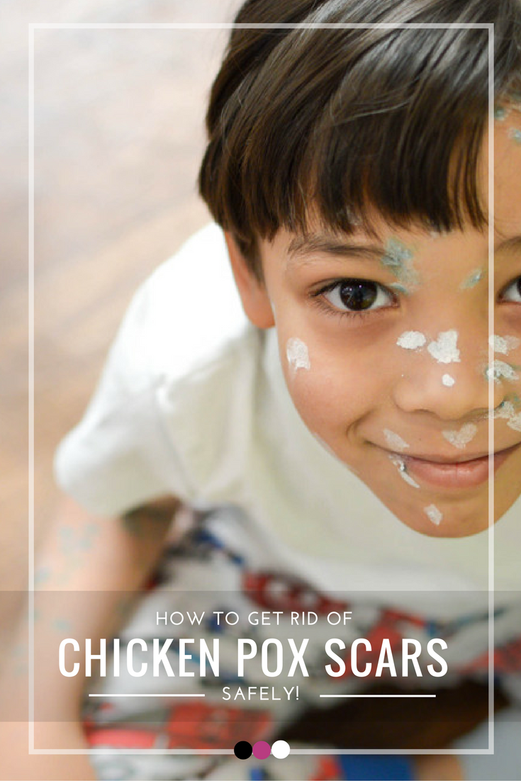Heal Chicken Pox Scars In 5 Easy Ways Mommy Essentials