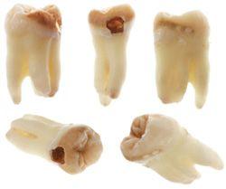 toothdecay1