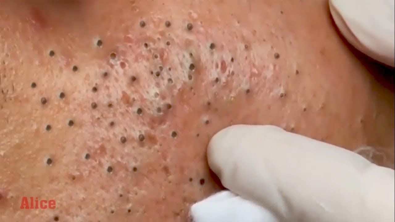The Most Satisfying Giant Blackheads Removal Skincare Routine Part 06 Blackheads On Face Home Remedies For Acne Acne On Nose