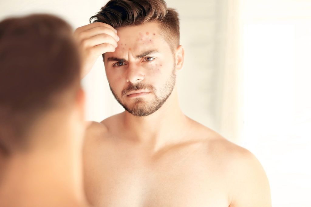 Beard And Skin Care Tips For Men With Oily Skin Beard Care For Oily Skin Beard Care Pimples Under The Skin Best Beard Oil