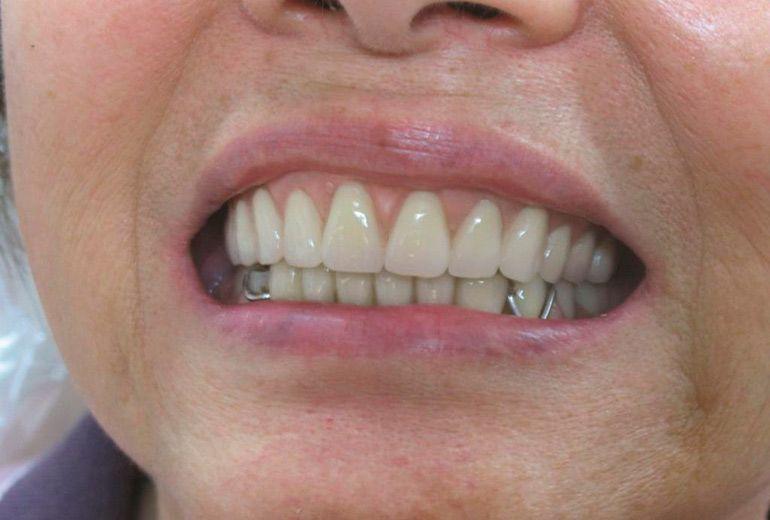 съемный зубной протез   Зубной, Стоматология, Украина