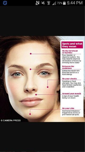 What Your Spots Mean Skin Care Pinterest Acne Scars Acne