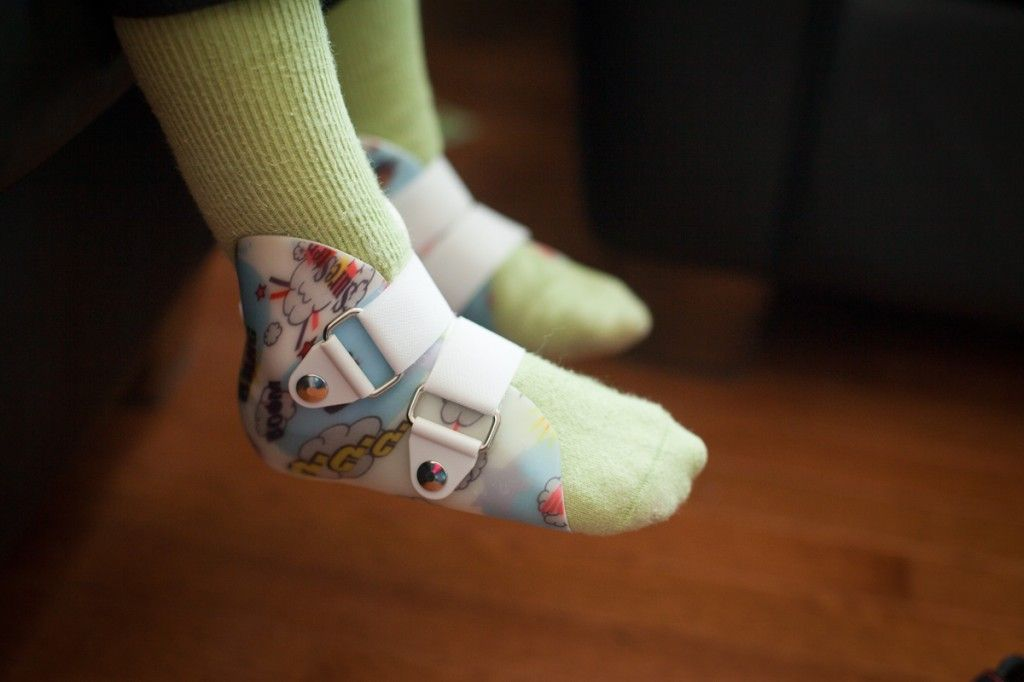 To help with flatfeet, special shoes or
