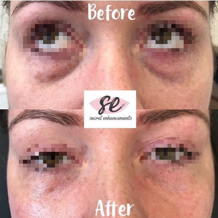 Amazing results from a tear trough I did in clinic! For