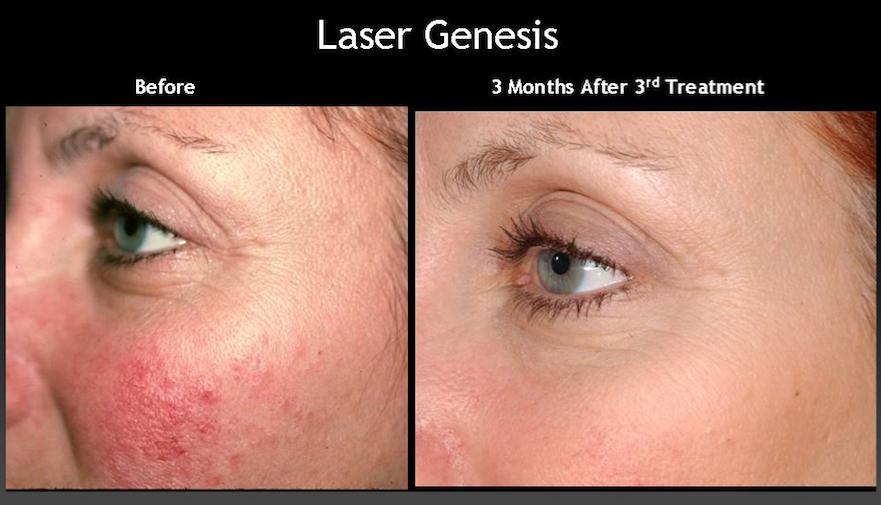 Laser Genesis Laser Skin Rejuvenation Skin Rejuvenation
