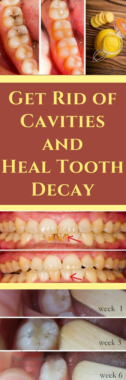 How To Fix Rotting Teeth : rotting, teeth, Erica, Gadgets, Tooth, Decay,, Cavities,, Dental, Cavities