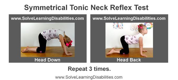 Retained Symmetrical Tonic Neck Reflex (STNR) - Solve Learning Disabilities