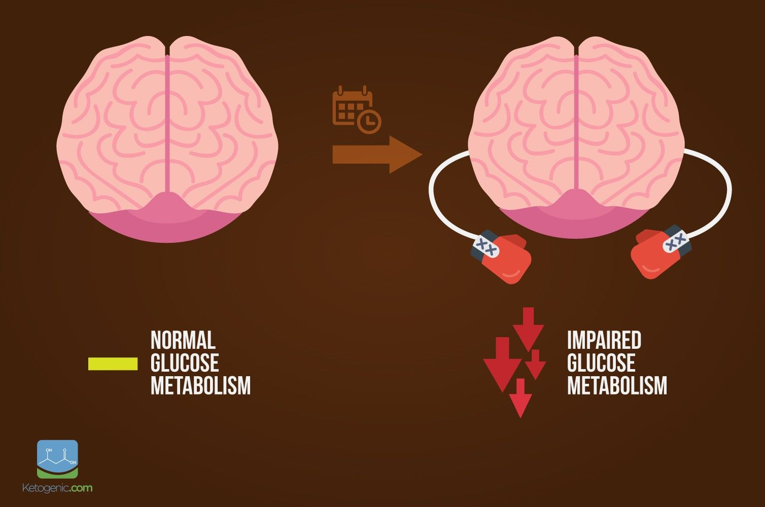 brain-with-gloves