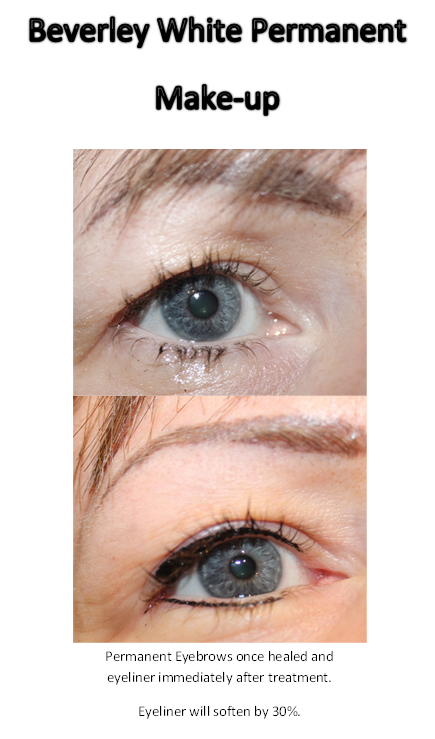 Beverley White Permanent Makeup Healed result of