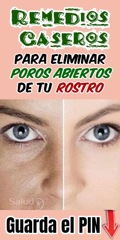 Remedios Caseros Para Cerrar Los Poros De La Cara Beauty Tips Cooking Recipes