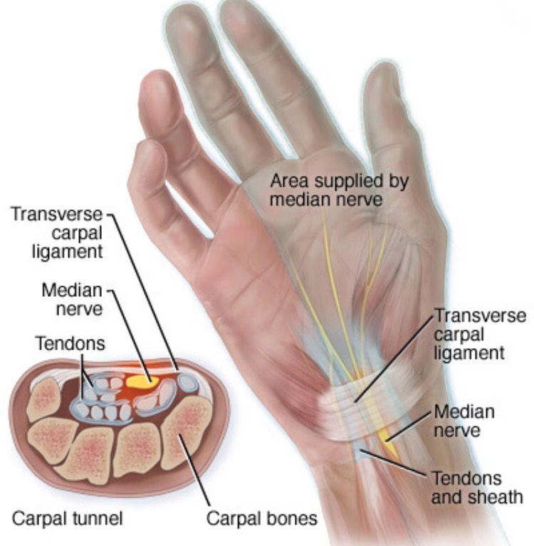 Anatomy Angel: Finger Flexion and Median Neuropathy | Dr. Dooley ...