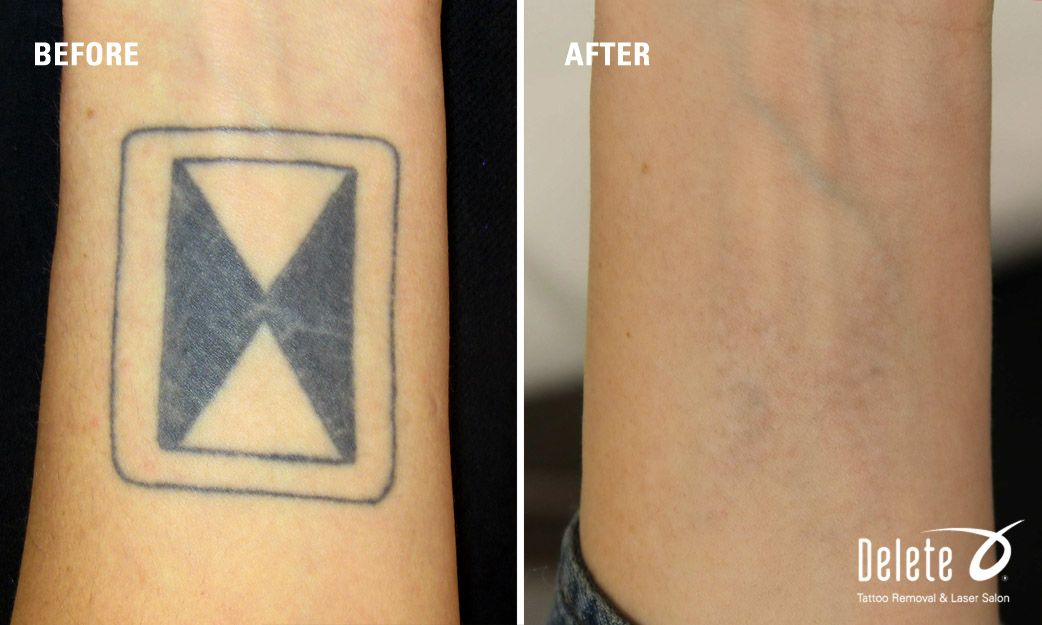 Pin By Sergei Shalamay On Deleted Tattoo Tattoos Laser Tattoo Removal Geometric Tattoo
