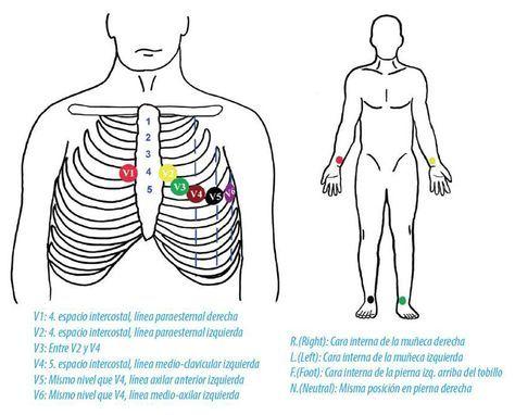 Ecg Colocación Electrodos Jpg 1000 808 Tecnico Auxiliar De Enfermeria Electrocardiograma Cuidados De Enfermería