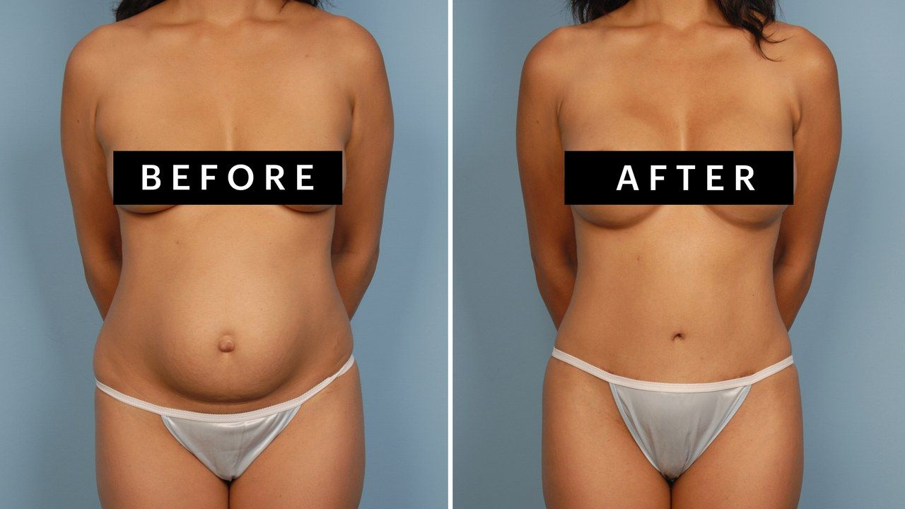 Here's Everything You Need to Know About the Mommy Makeover Don't be fooled: The cutesy term actually refers to a very serious package of plastic surgery procedures. The mommy makeover