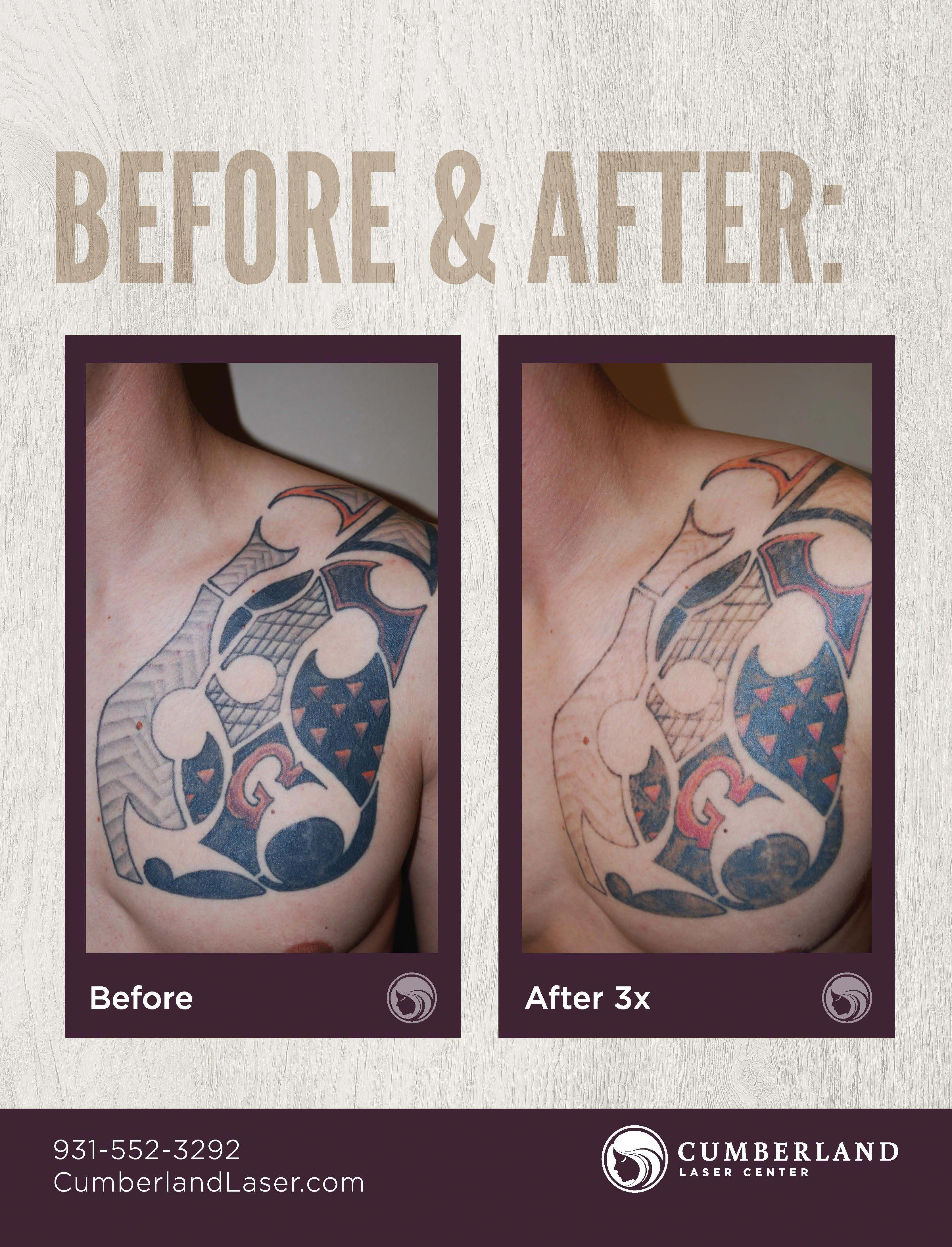 Pin by painless tattoo removal on tattoo removal tattoo