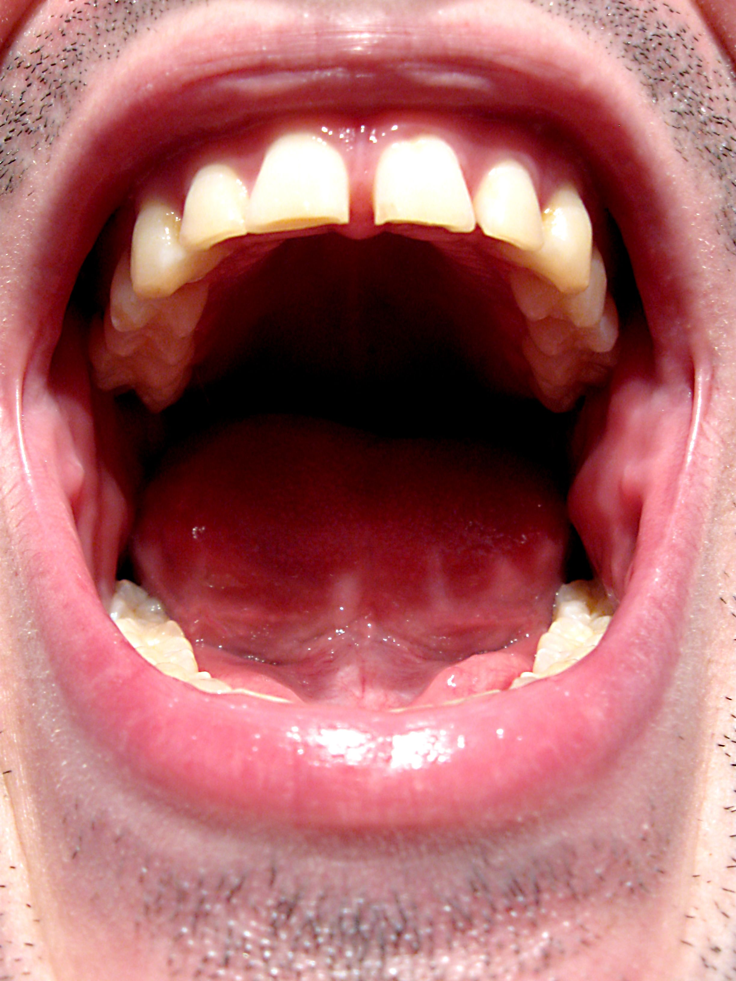 Going to bed without brushing your teeth is disgusting
