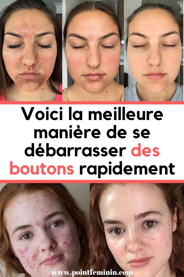 2709a13efb42 Comment en finir avec les boutons d acné en 3j   Masque anti-acné naturel   Masque  acné  bouton  visage  remède