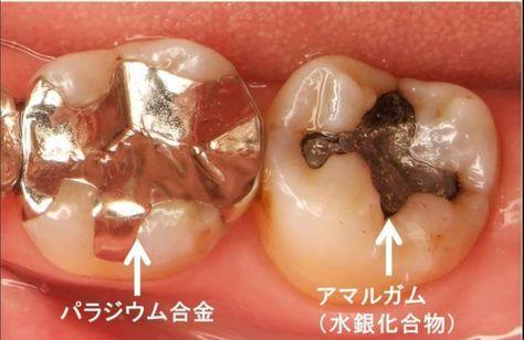 世界で禁じられた金属 アマルガム がアナタの口に入ってます 本当に怖い 銀歯という歯の詰め物 どくらぼ アマルガム 健康 歯