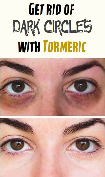 Get rid of Dark circles with Turmeric | Dark circles, Dark ...