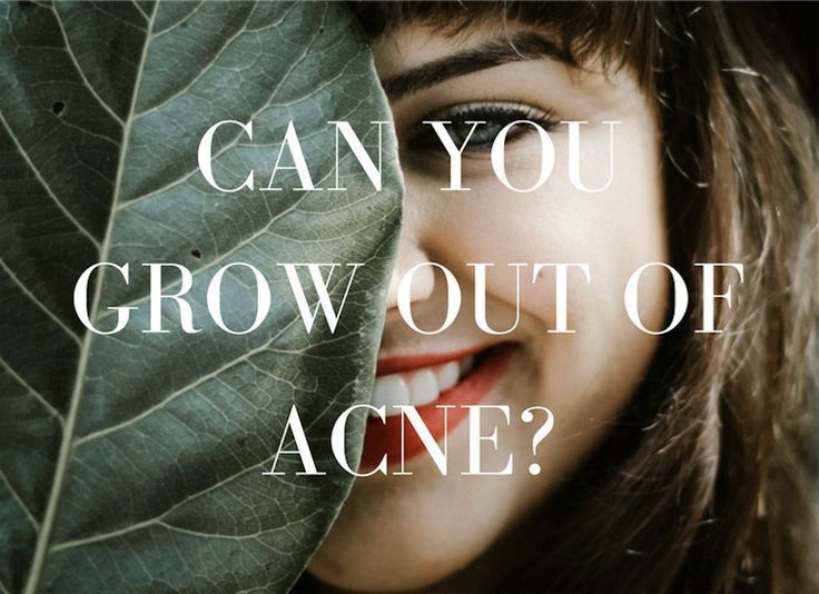 Can you grow out of acne hooded eye makeup serious