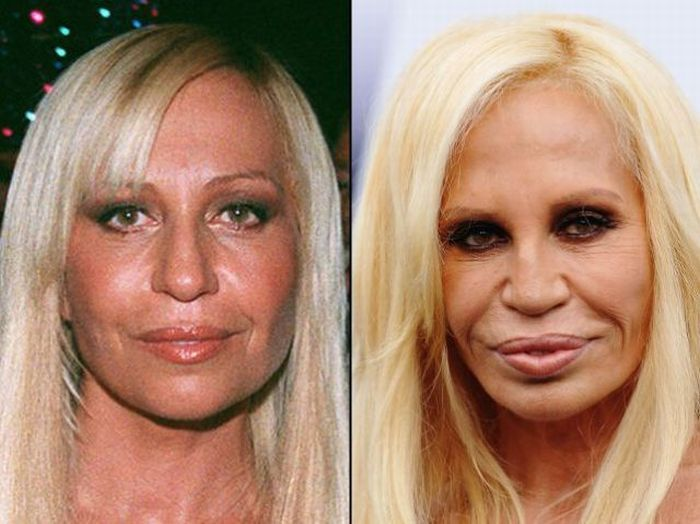 Donatella Versace Before and After a Plastic Surgery