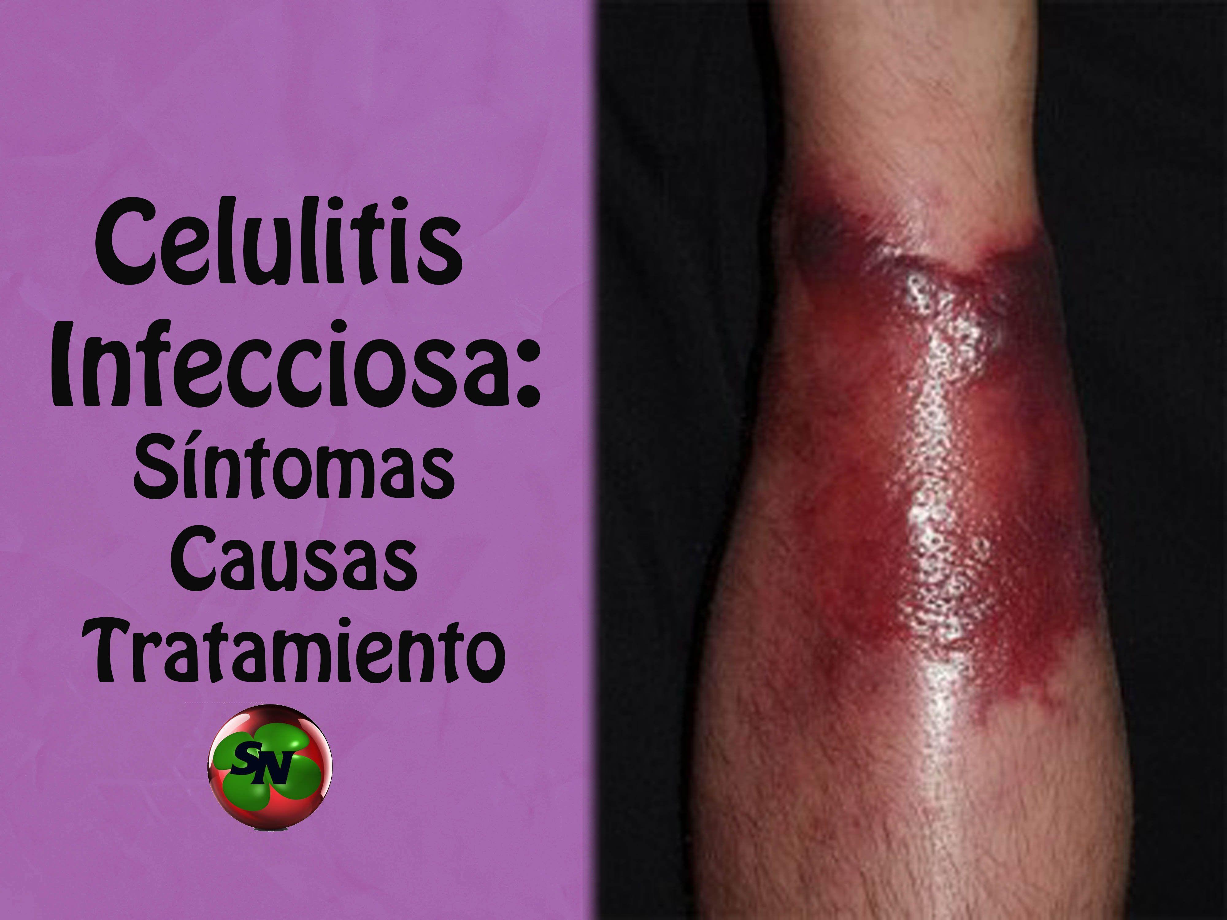 infeccion celulitis en los pies