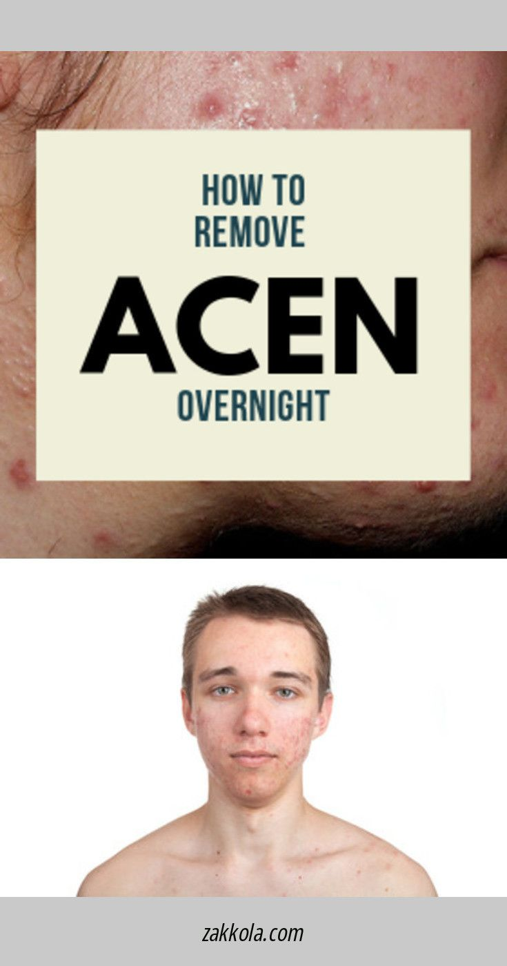 Visit the webpage to learn more about acne. Just click on the link to…