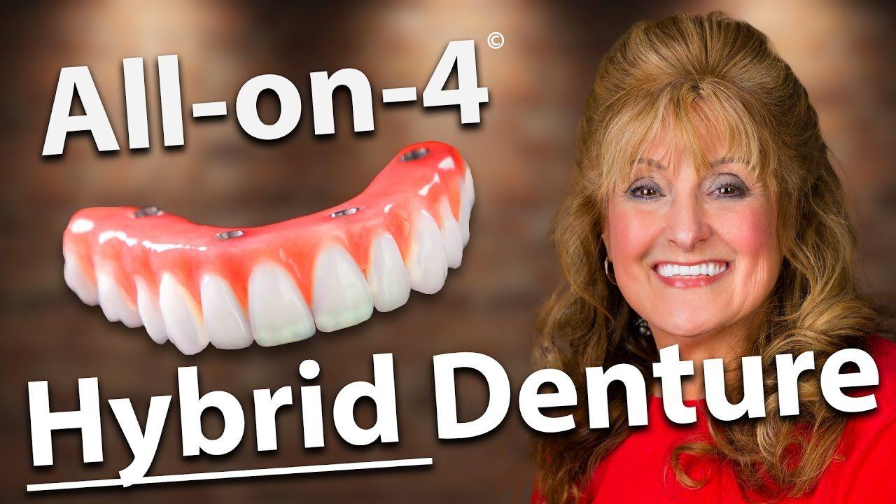 Fixed denture hybrid denture allon4 dental implants